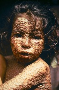 Niño con Viruela
